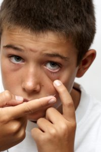 Boy-Inserting-Contact-Lenses-at-opticians